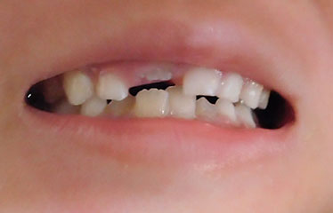 抜け あと 乳歯 た